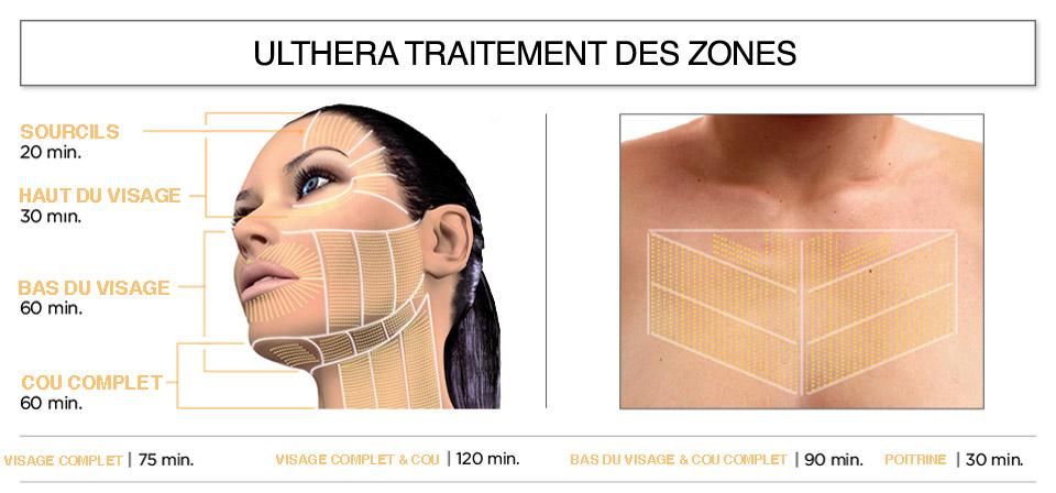 Ulthera-zones