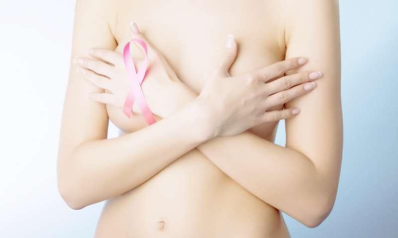 Chirurgie oncoplastique