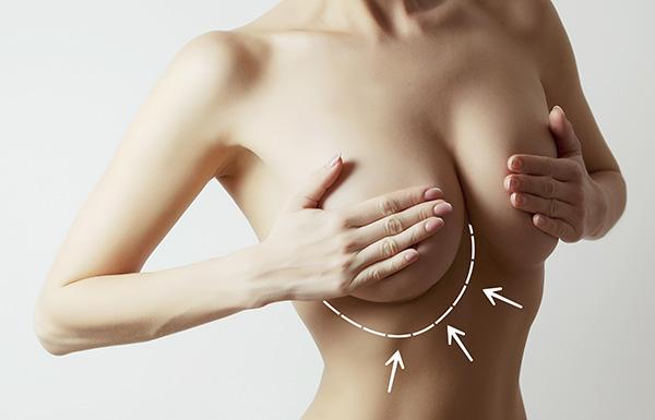 Augmentation mammaire à Genève et à Nyon, Vaud