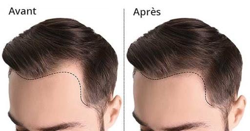La perte des cheveux et leur affinement progressif est très fréquent. Beaucoup de patients expérimentent aussi une perte de l'éclat des chev
