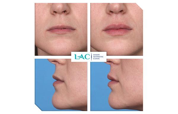 Restauration des volume des lèvres par injection d'acide hyaluronique